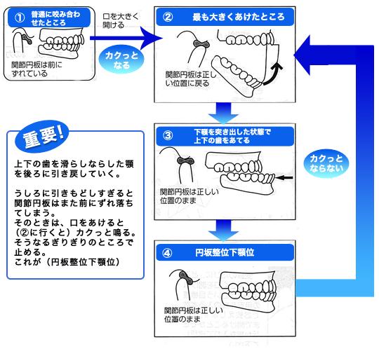 顎関節症2