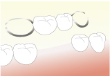 欠損補綴(失った歯を作る)