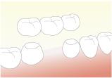 欠損補綴(失った歯を作る) ブリッチ