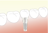 欠損補綴(失った歯を作る) インプラント